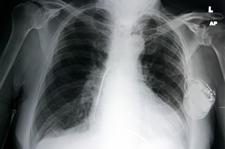 xray_pacemaker